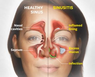 Accupressure for sinus and hayfever relief